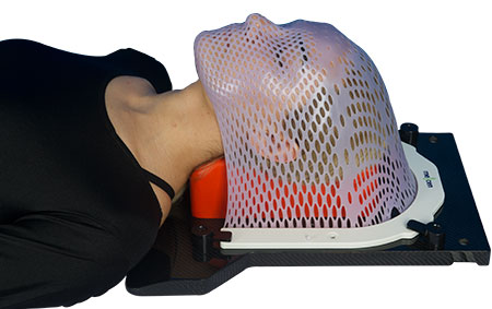 U-Shaped Radiotherapy Thermoplastic Mask